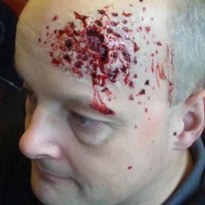 Shotgun wound; for halloween